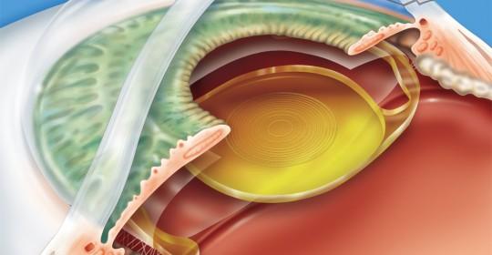 implante de lente intra ocular curitiba