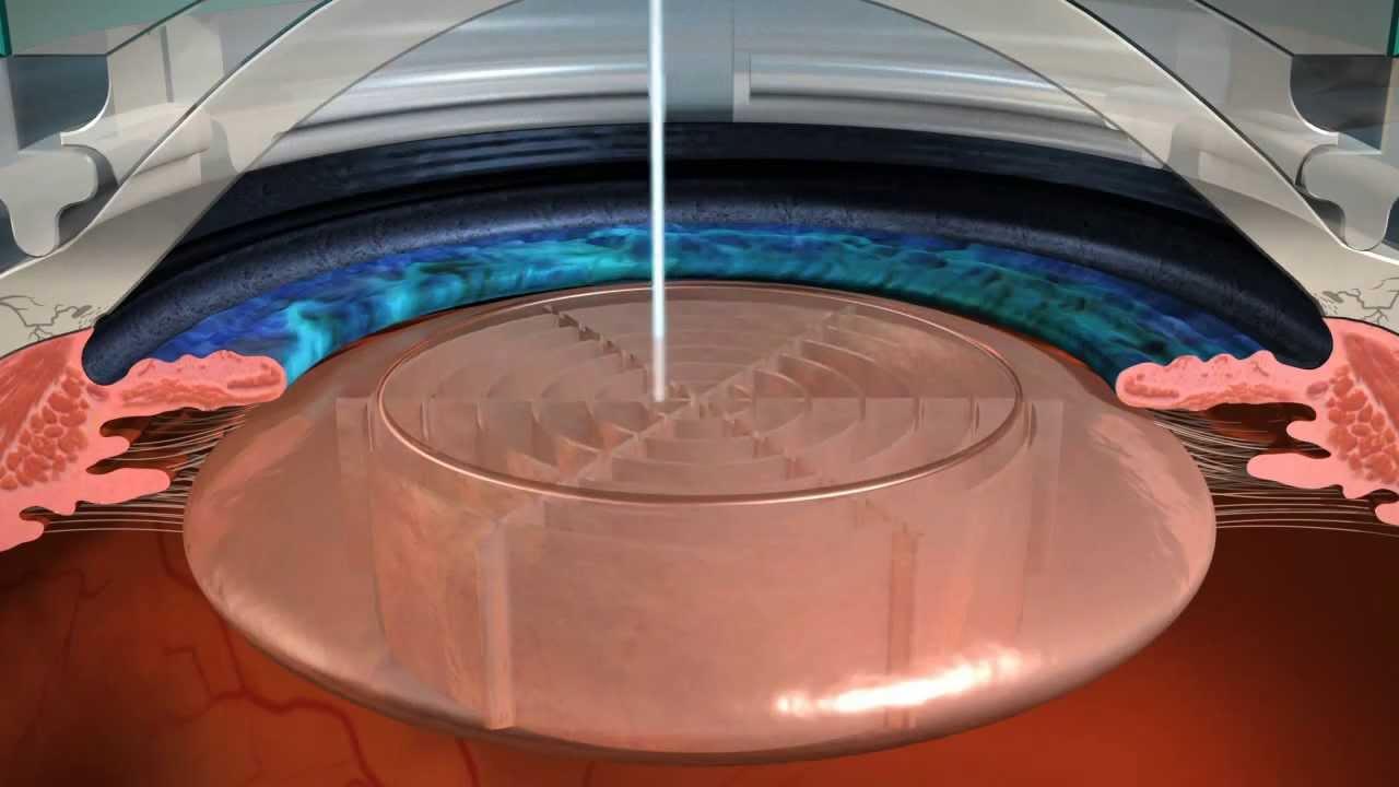 O Laser Femtosegundo tem maior precisão durante a cirurgia de catarata