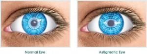 cirurgia refrativa a laser astigmastismo