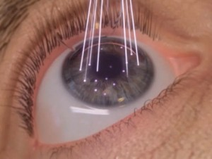cirurgia refrativa curitiba astigmatismo dr osny sedano
