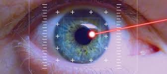 Cirurgia refrativa a laser personalizada em Curitiba