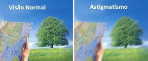 cirurgia para astigmatismo em curitiba