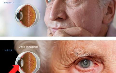 Cirurgia Refrativa de Catarata | Miopia, Astigmatismo, Presbiopia e Hipermetropia em Curitiba