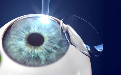 Cirurgia Refrativa a Laser com PRK e LASIK em Curitiba