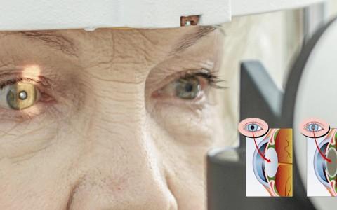 A Cirurgia de Catarata precisa de Anestesia?