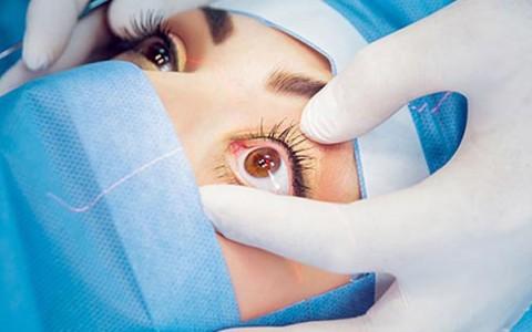 Qualquer pessoa pode fazer a cirurgia refrativa a laser?