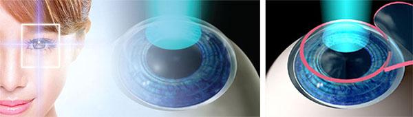 cirurgia de miopia curitiba dr osny
