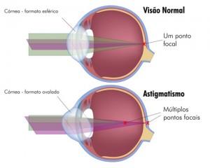 cirurgia refrativa curitiba astigmatismo