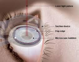 cirurgia refrativa  laser correção astigmatismo curitiba