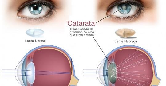 Esclarecendo as principais dúvidas sobre a Cirurgia de Catarata