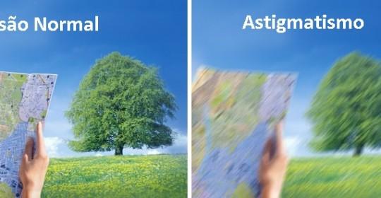 Cirurgia Refrativa para Astigmatismo em Curitiba