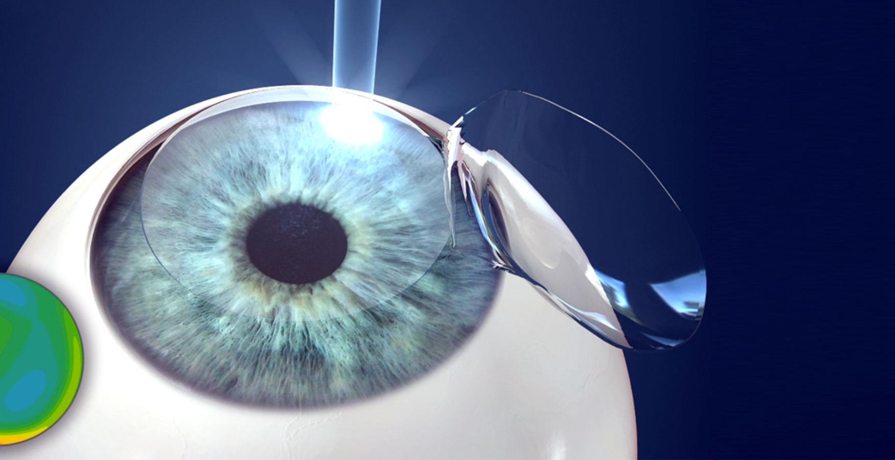 87d0bf3d6 cirurgia refrativa a laser | Cirurgia Refrativa em Curitiba