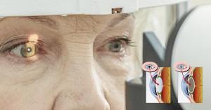 anestesia da cirurgia de catarata