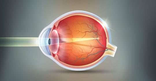 Tratamento da Miopia com Cirurgia Refrativa em Curitiba