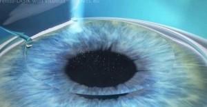 cirurgia refrativa a laser curitiba