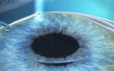 Cirurgia Refrativa em Curitiba: Entenda o que é a cirurgia a laser e como ela corrige os erros refrativos