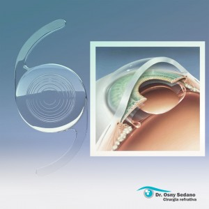 o que é a lente intraocular