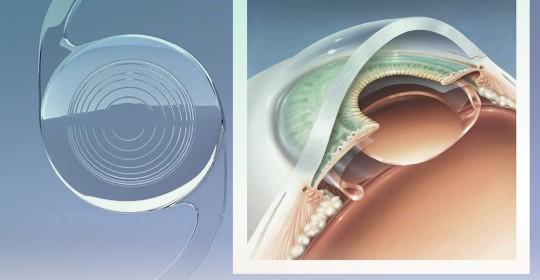 O que é a lente intraocular?