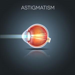 Cirurgia Refrativa corrige mesmo o astigmatismo Entenda tudo sobre a cirurgia a laser em Curitiba