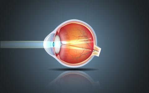 Cirurgia Refrativa corrige mesmo o astigmatismo? Entenda tudo sobre a cirurgia a laser em Curitiba