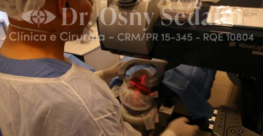 O que é Cirurgia Refrativa? atendimento por convênio em Curitiba